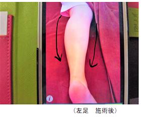 むくみ 左足 施術後